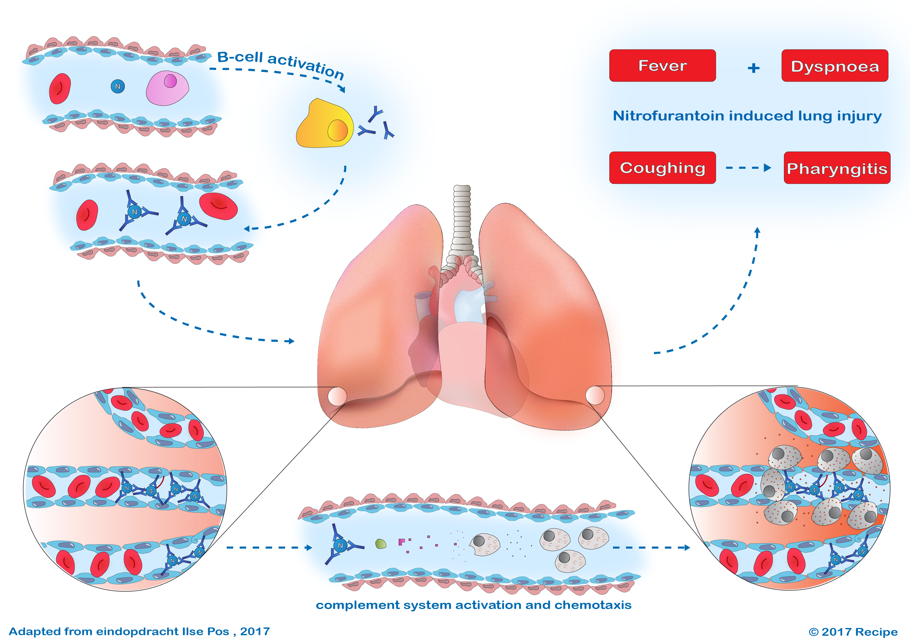 A rare side effect (interstitial pneumonitis) of nitrofurantoin